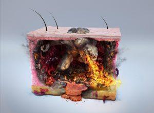 zombiestudio-melanoma-monster